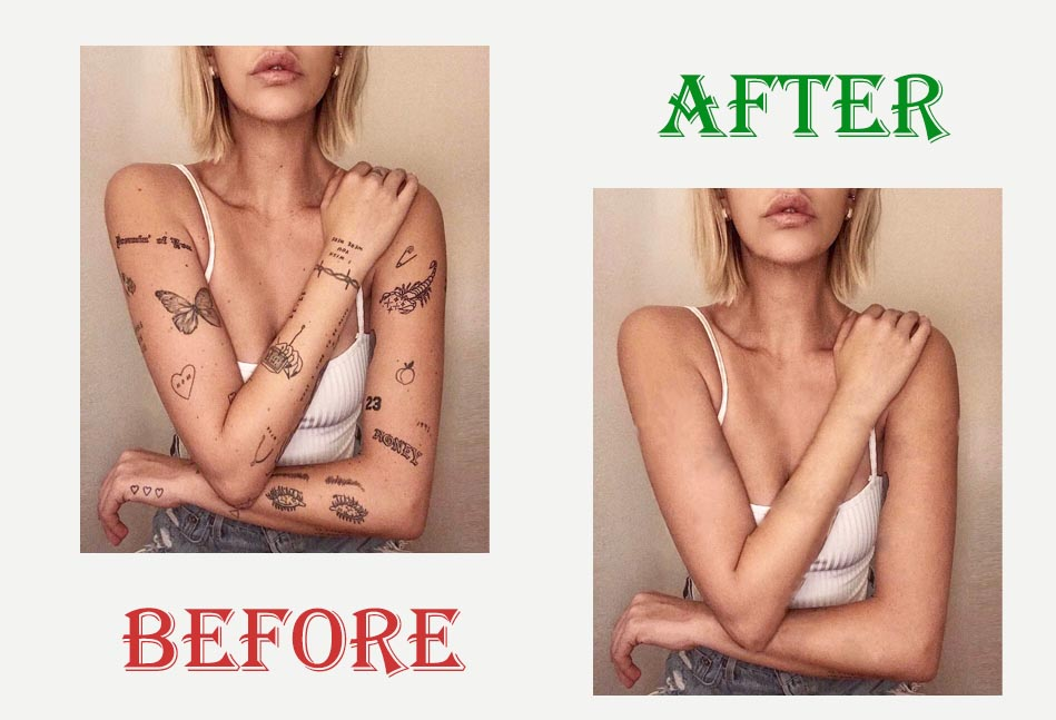 Tattoo Removal Service